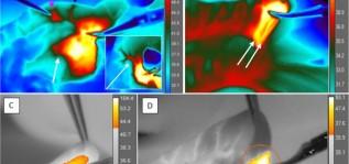 Исследования тепловых эффектов монополярной электрохирургии с помощью термографии